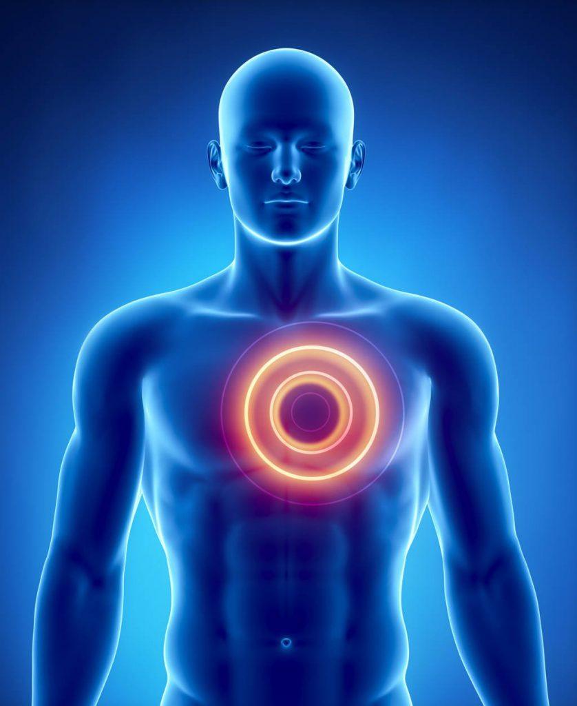 грудной болевой синдром
