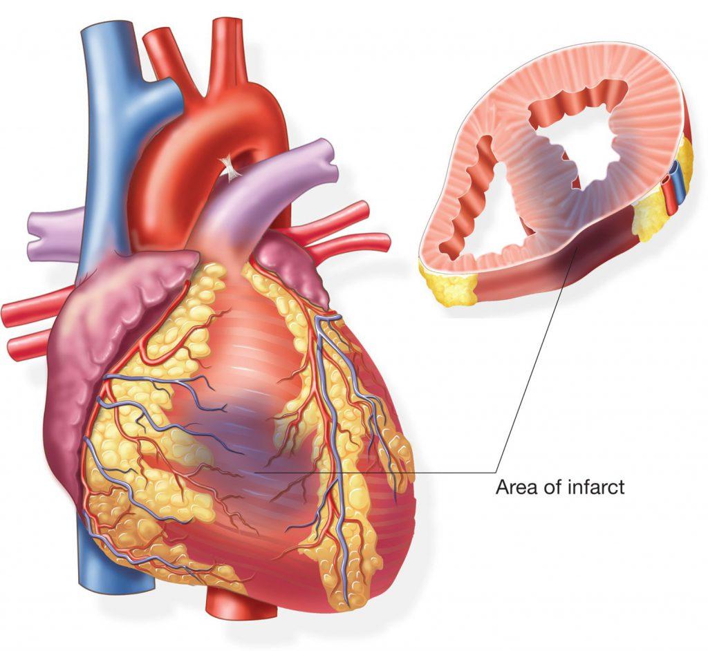 поражение сердечной мышцы