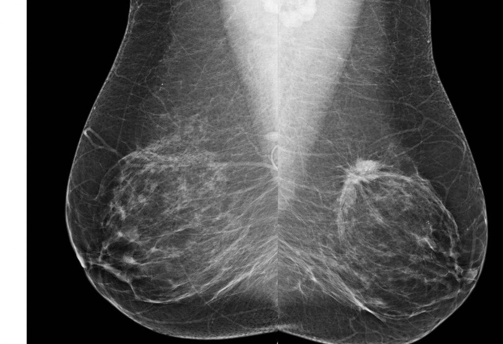 рентгеновские снимки достаточно информативны