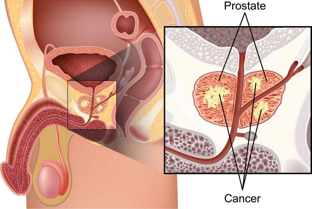 анатомия опухоли в предстательной железе
