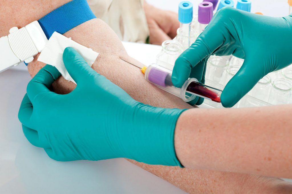 сдача крови на инфекцию