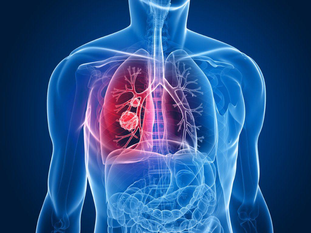пневмония при СПИДе