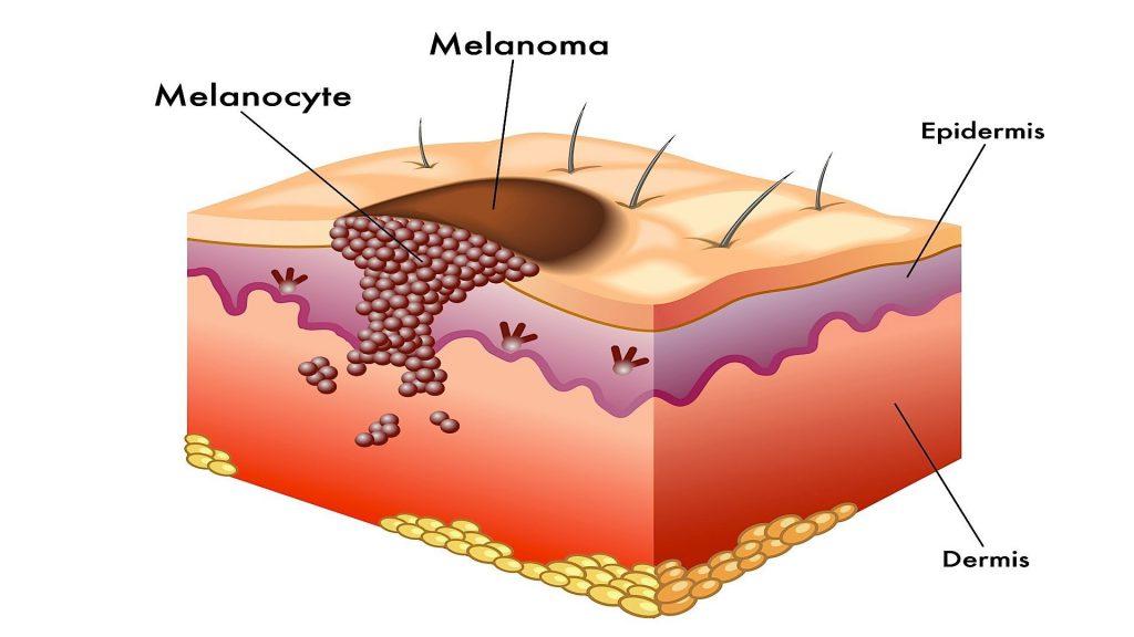 так выглядит рак кожи