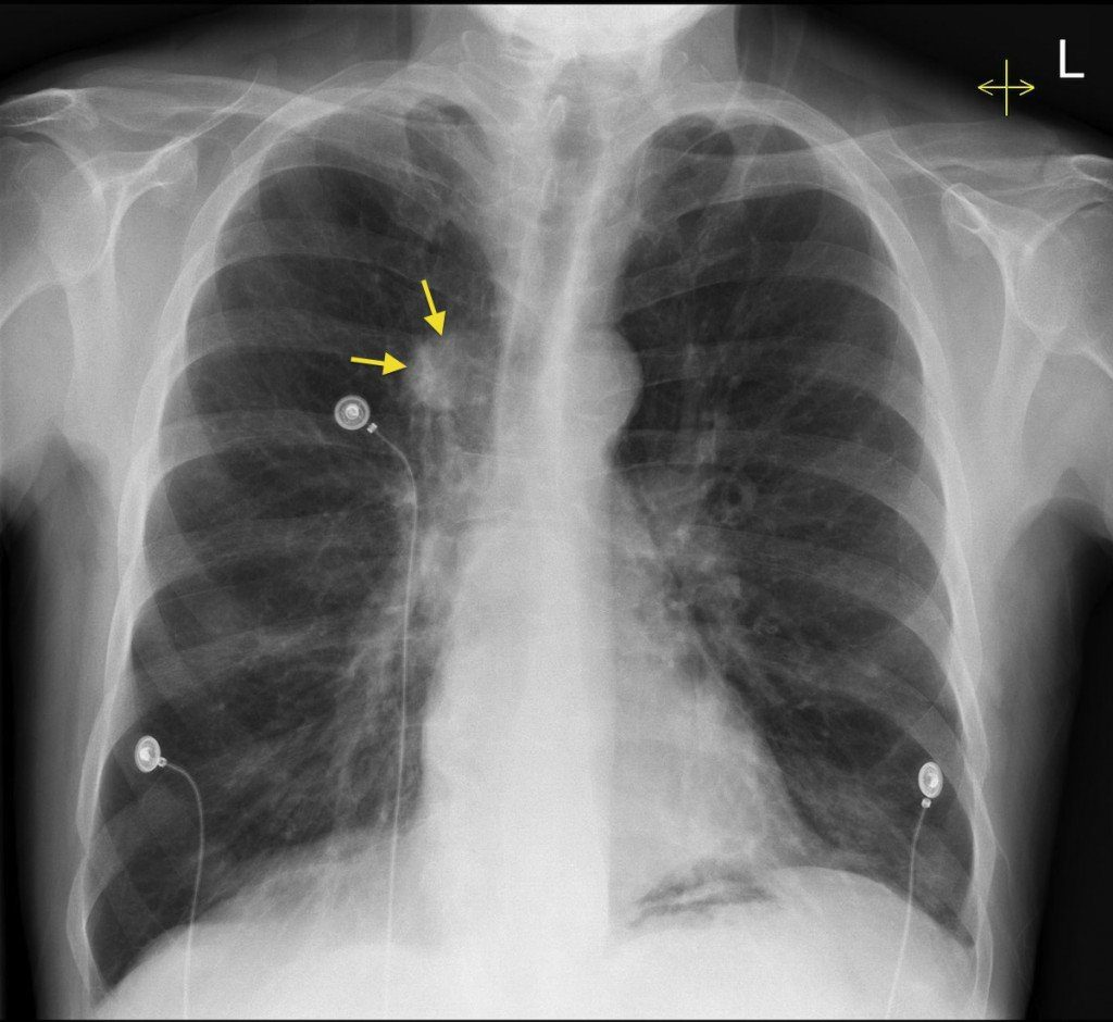 обзорный рентгеновский снимок