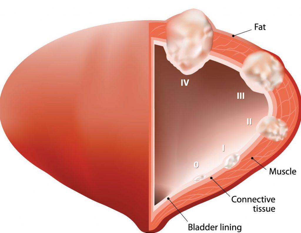 стадирование опухоли