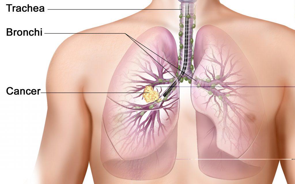 опухоли легких и бронхов