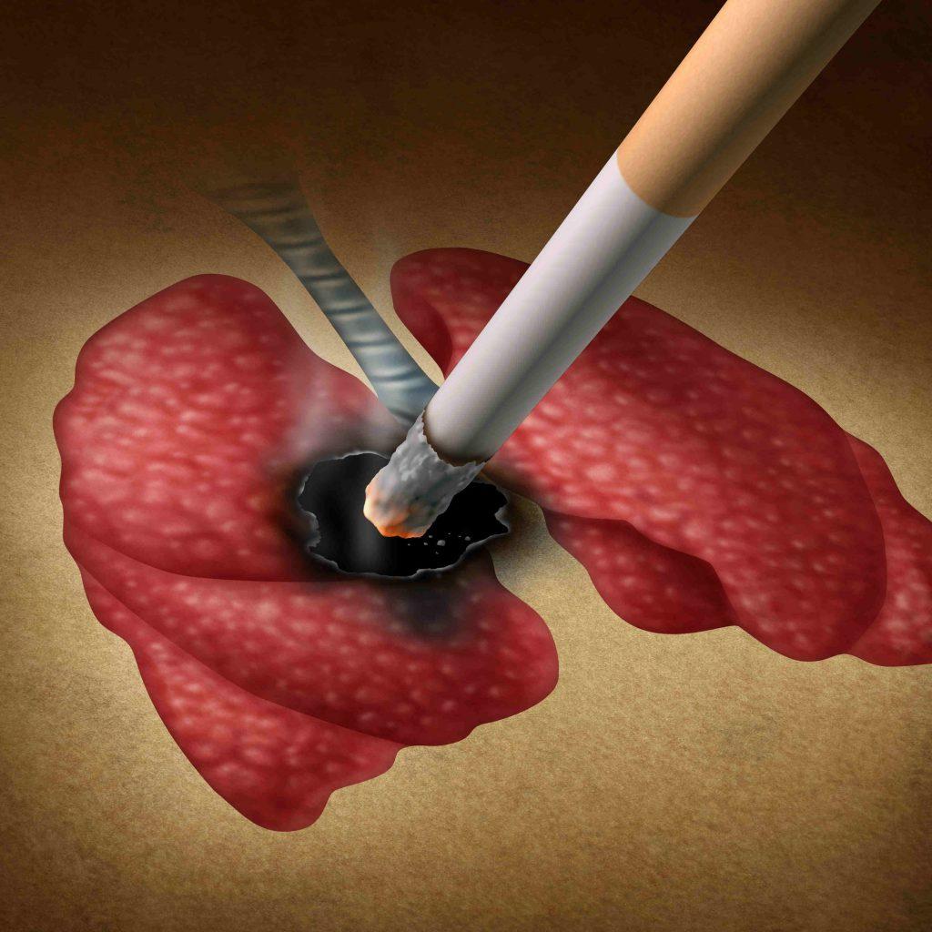 куриние провоцирует онкологию