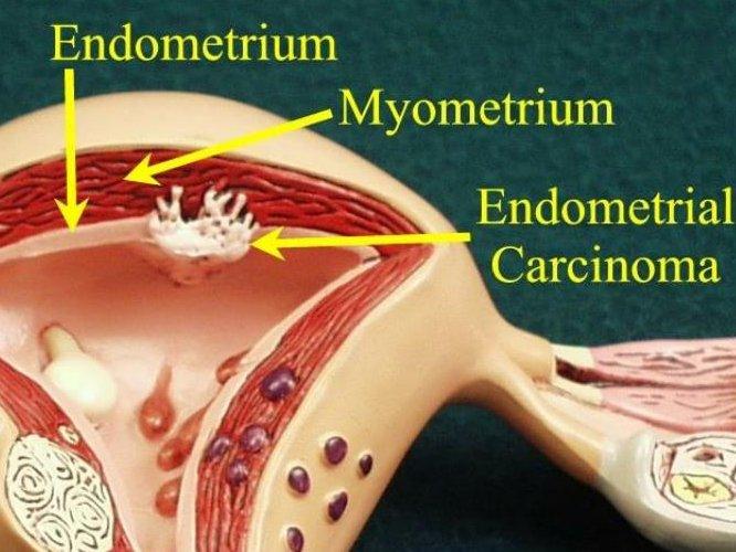 развитие карциномы