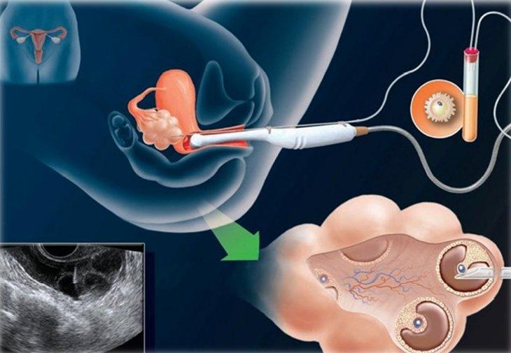 методика забора половых клеток