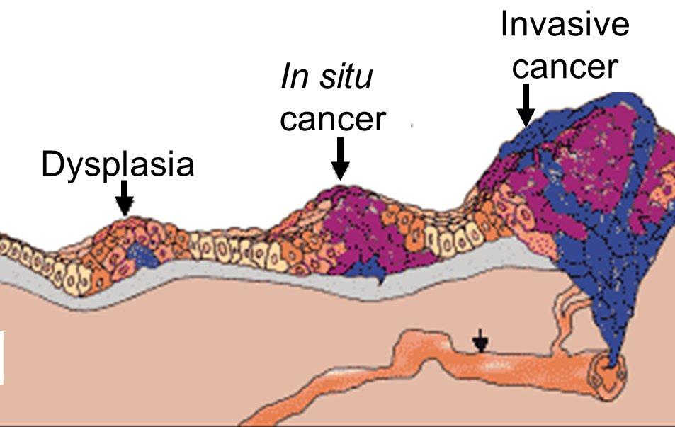 схема канцерогенеза