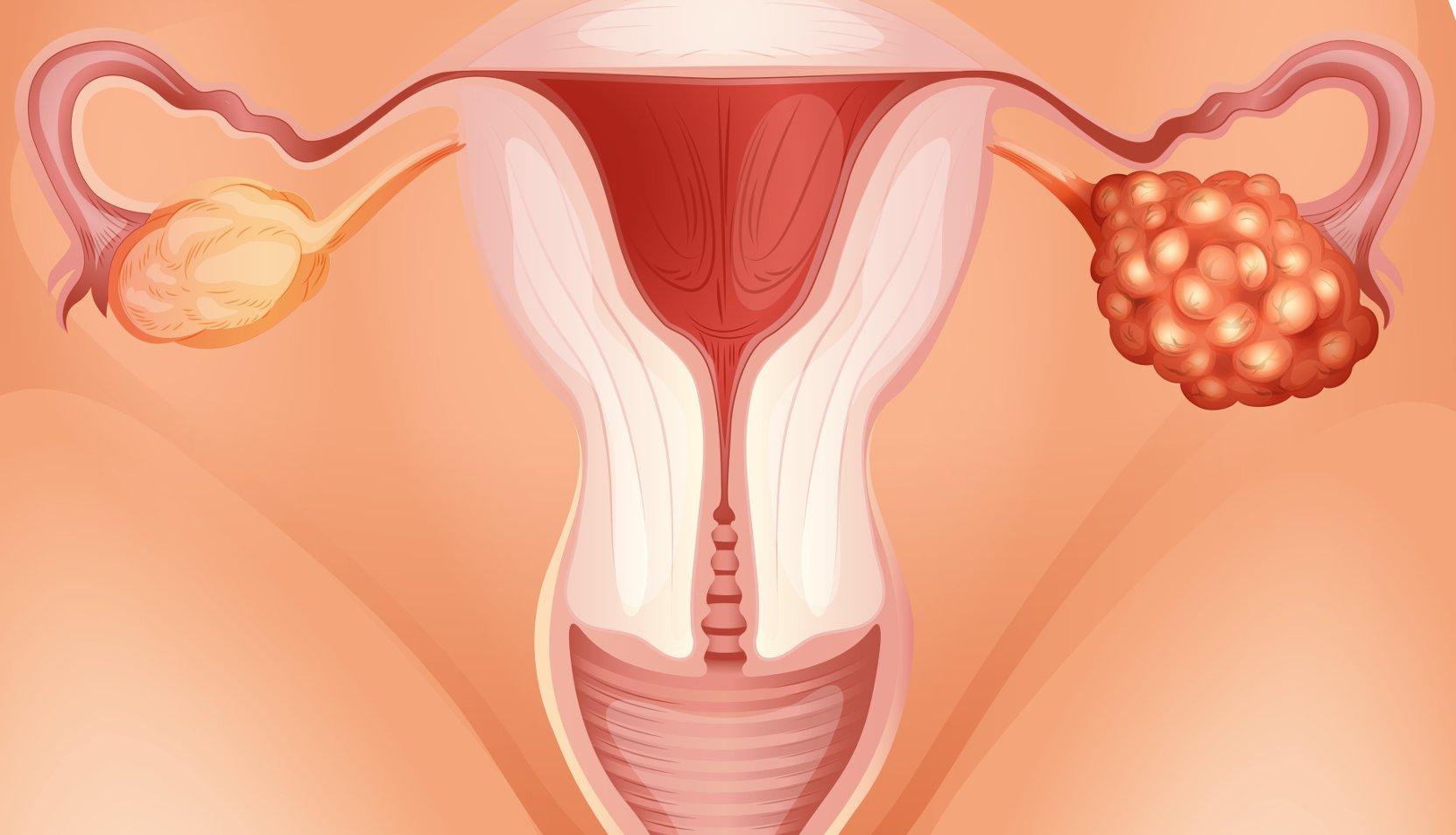 Киста яичника у беременной женщины 63