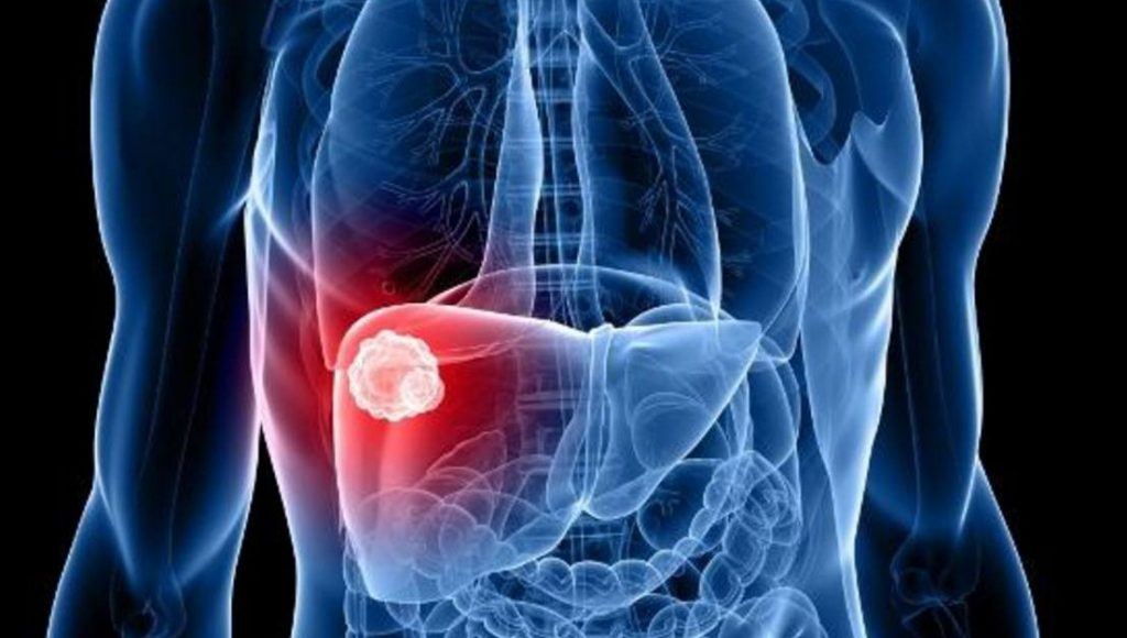 диагноз рака