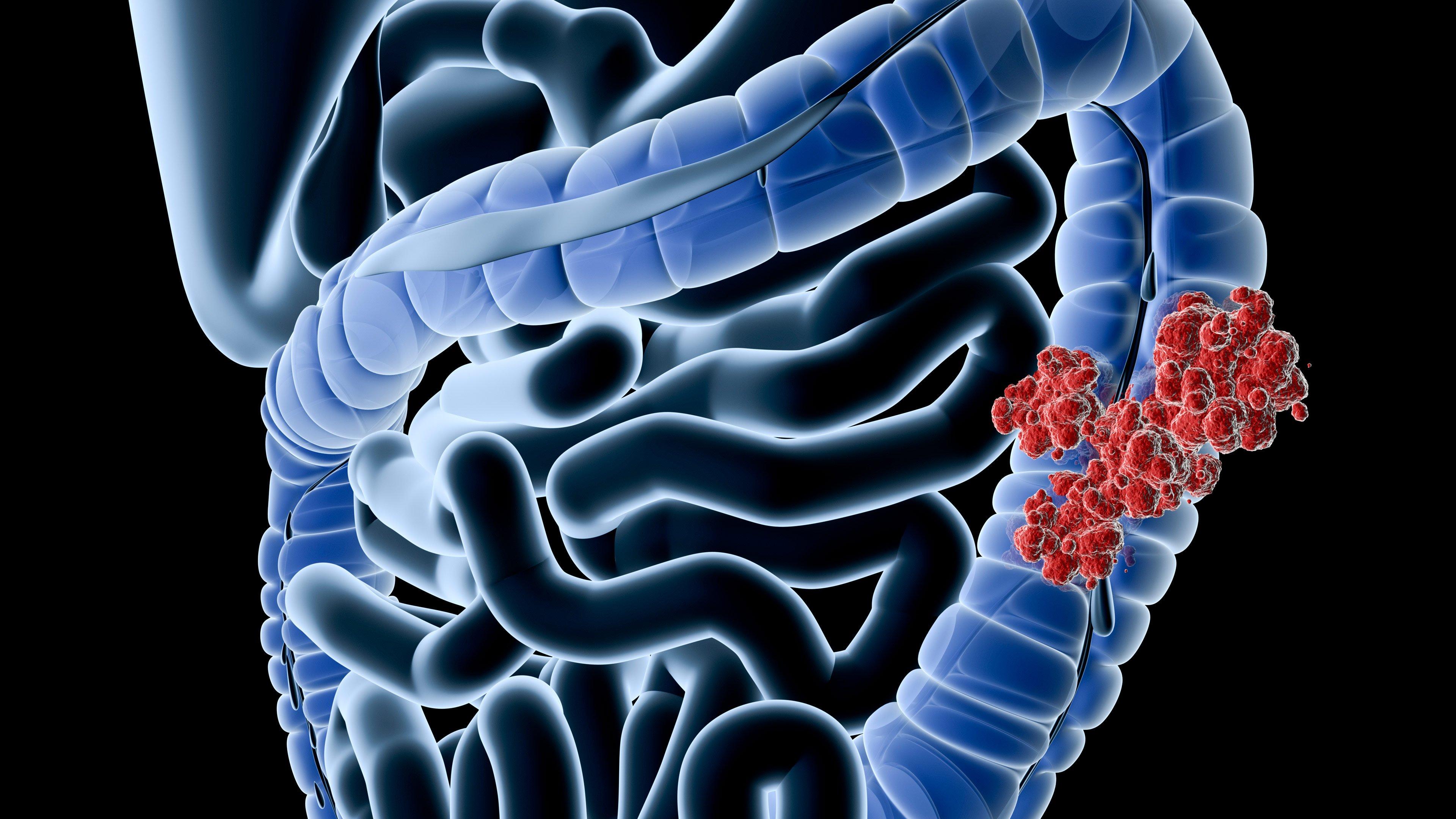новообразование в кишечнике