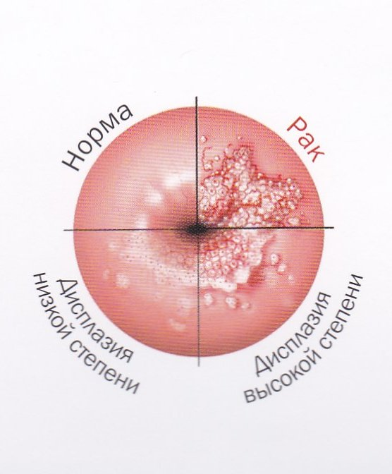 цервикальная неоплазия