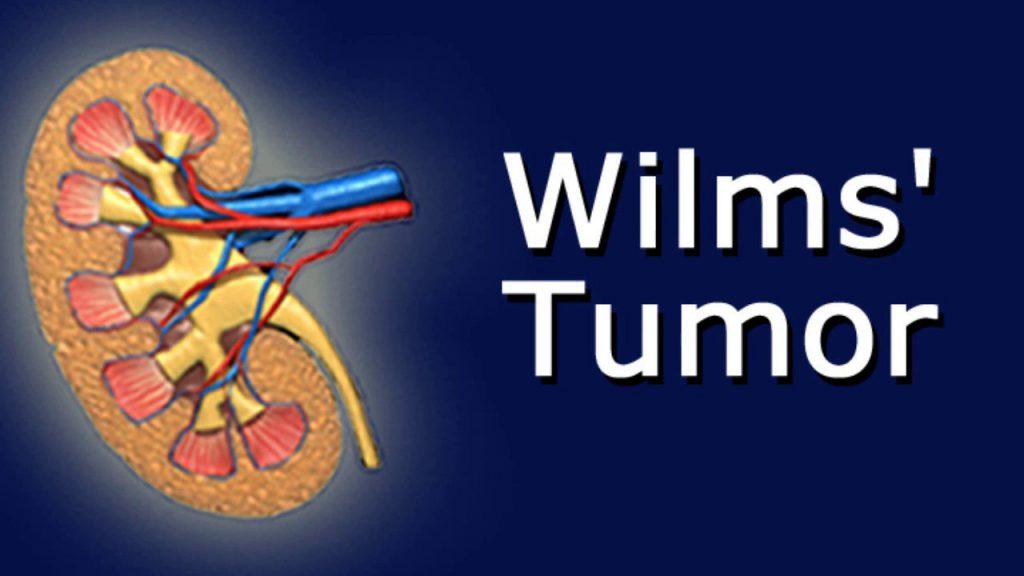 опухоль Вильмса