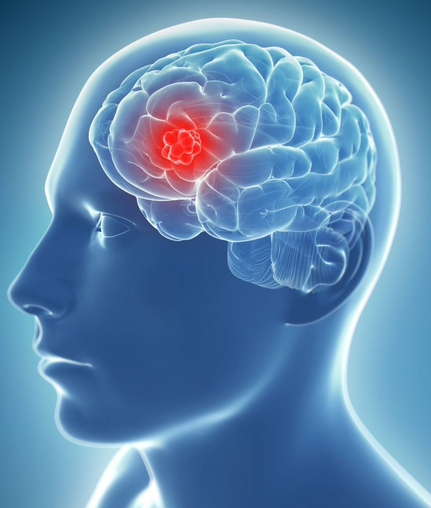 лечение рака головного мозга