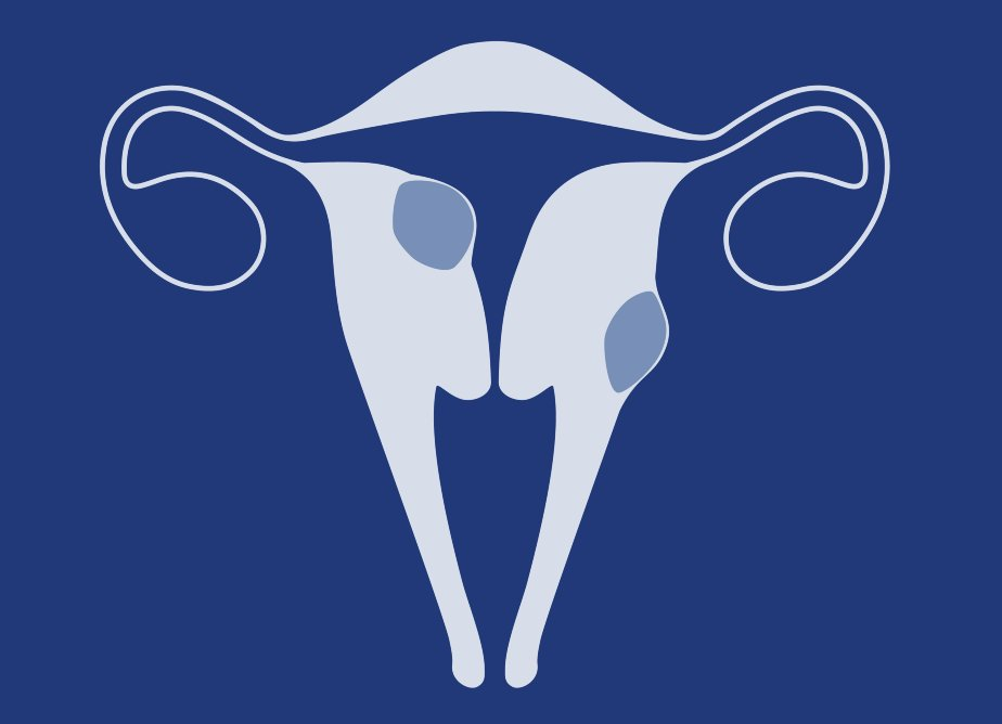 лечение миомы матки без операции