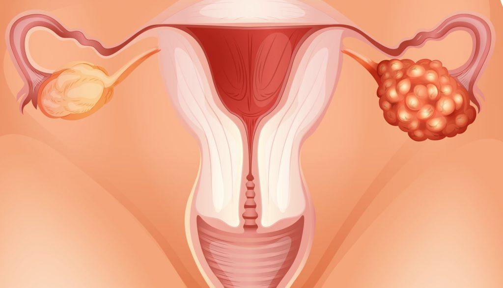 признаки кисты яичника