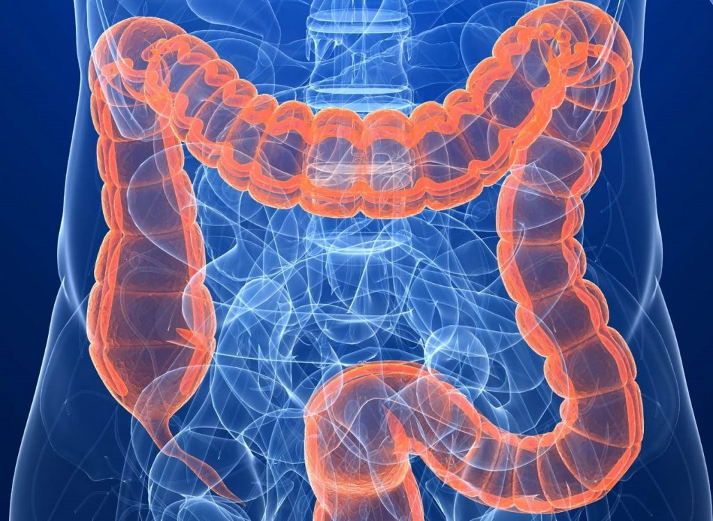 признаки рака толстой кишки