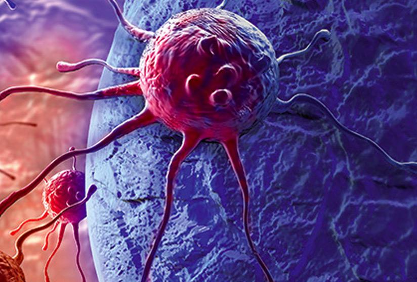 инфильтративный рост опухоли