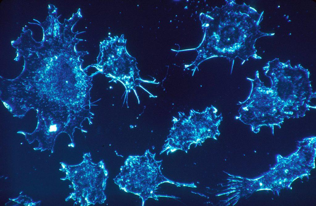 распад раковой опухоли