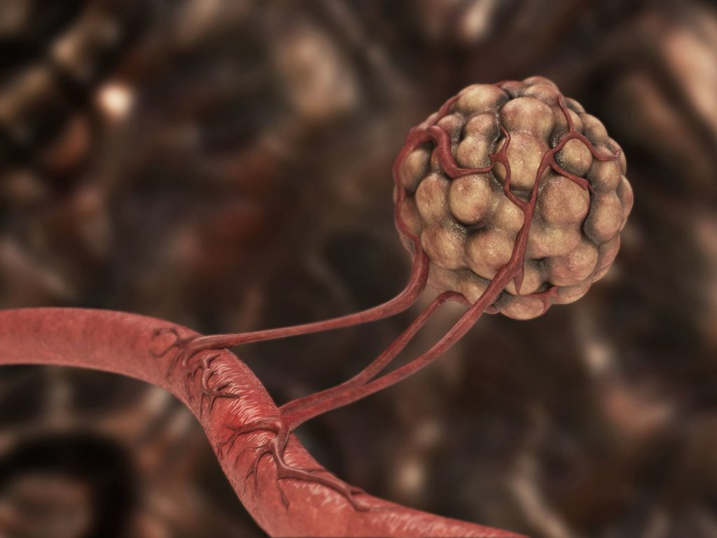 ангиогенез опухоли