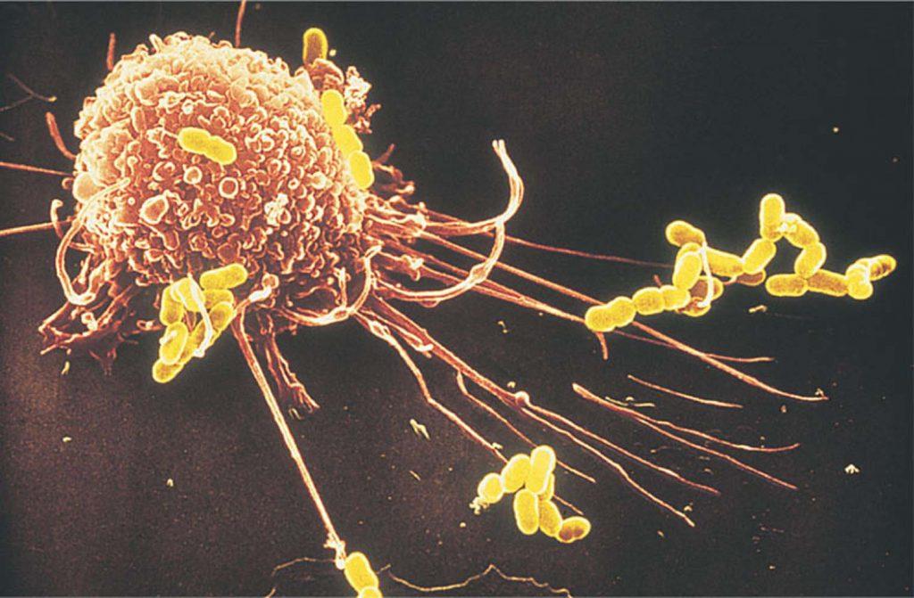 иммунный надзор