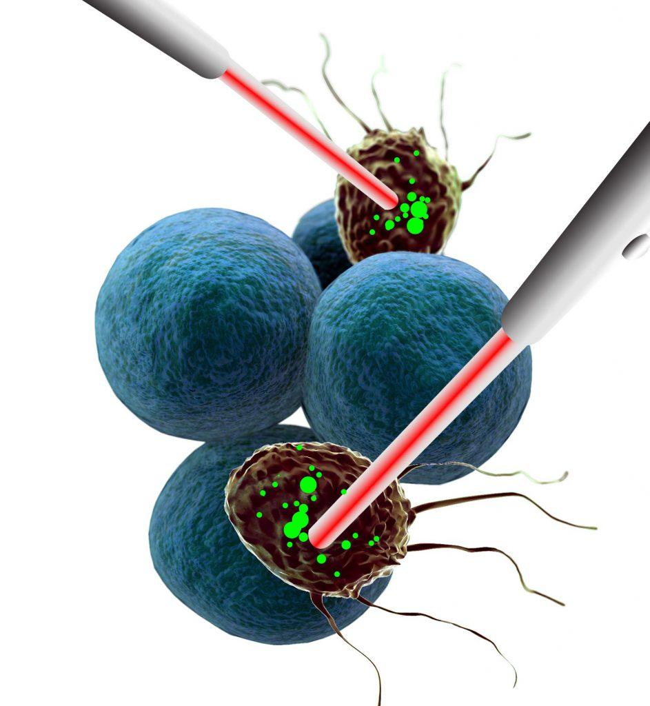 фотодинамическая терапия рака
