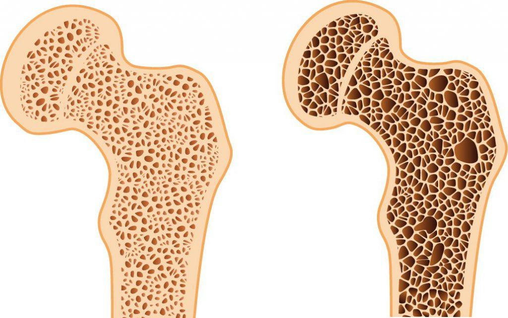 причины остеопороза у женщин