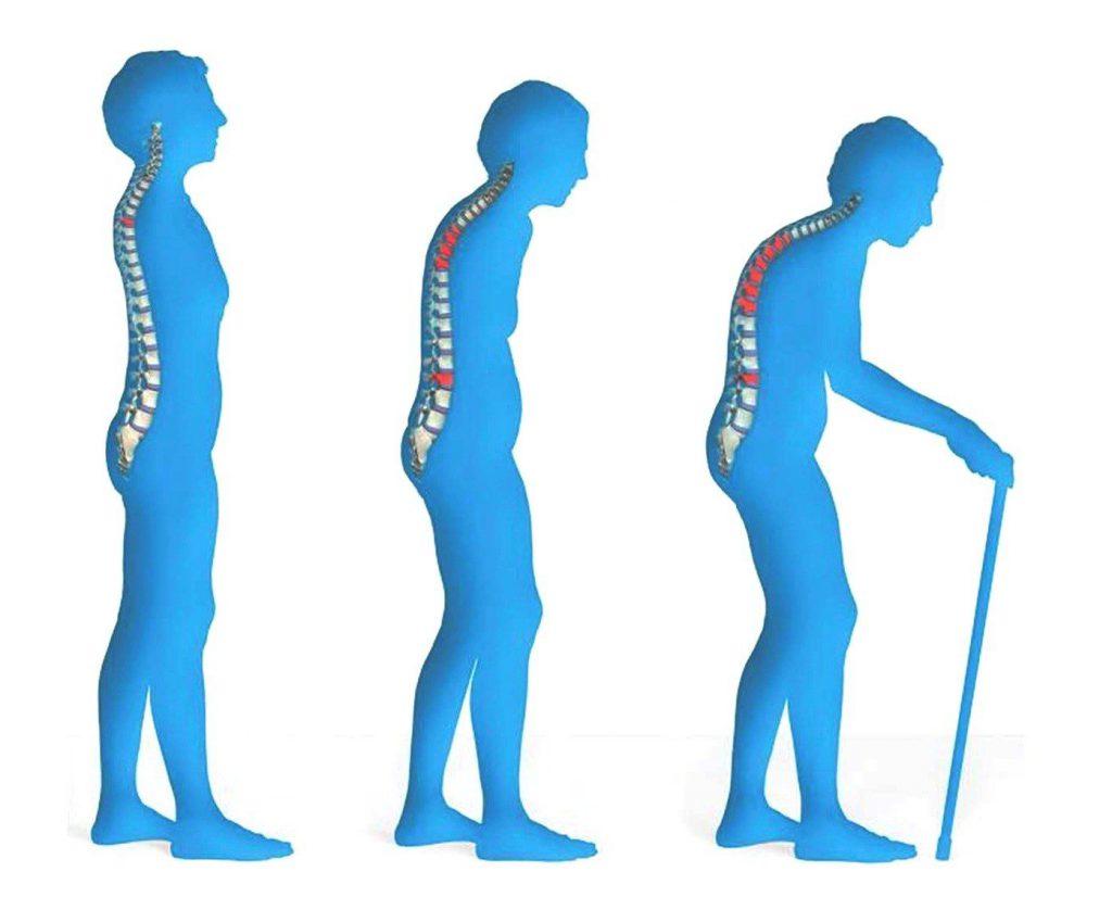 профилактика остеопороза у женщин