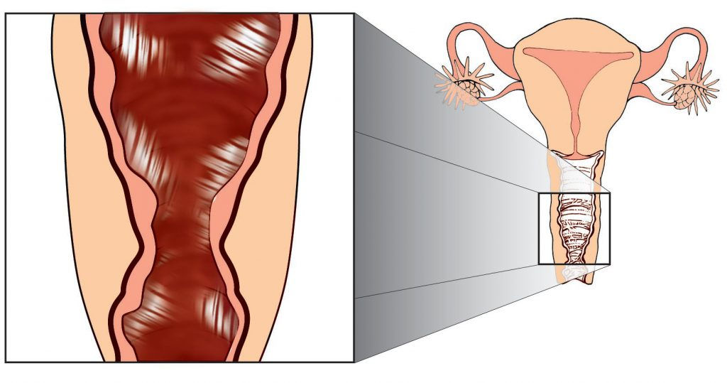 диспареуния у женщин