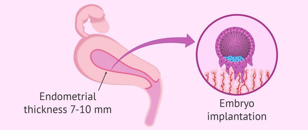 патология полости матки