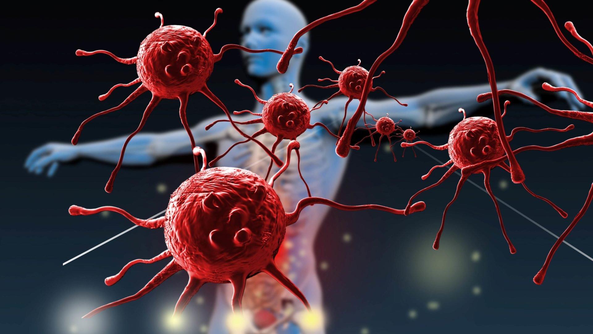 иммунодефицитные состояния