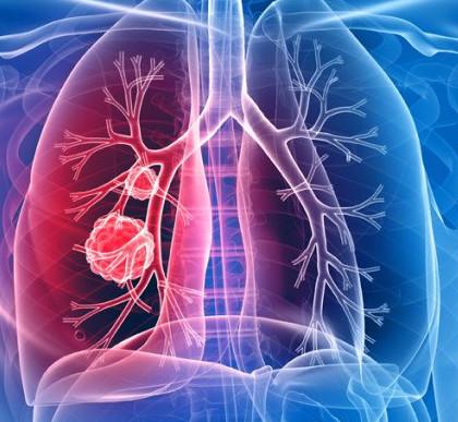 подозрение на рак легких