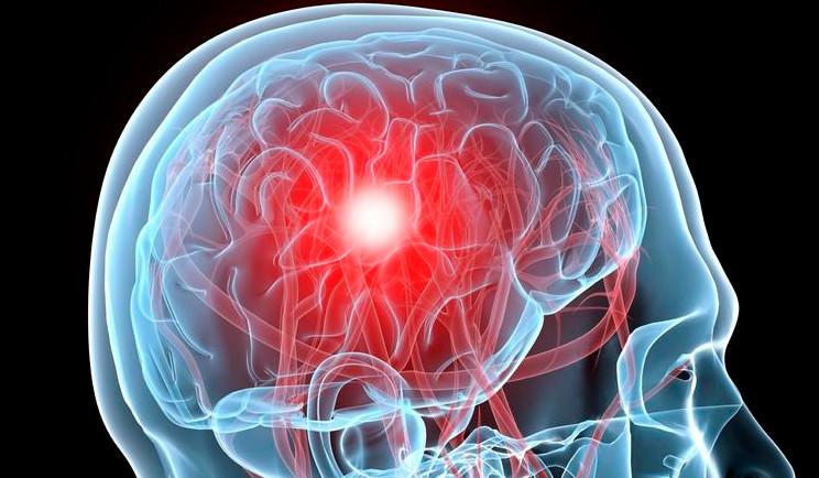 головная боль при раке мозга