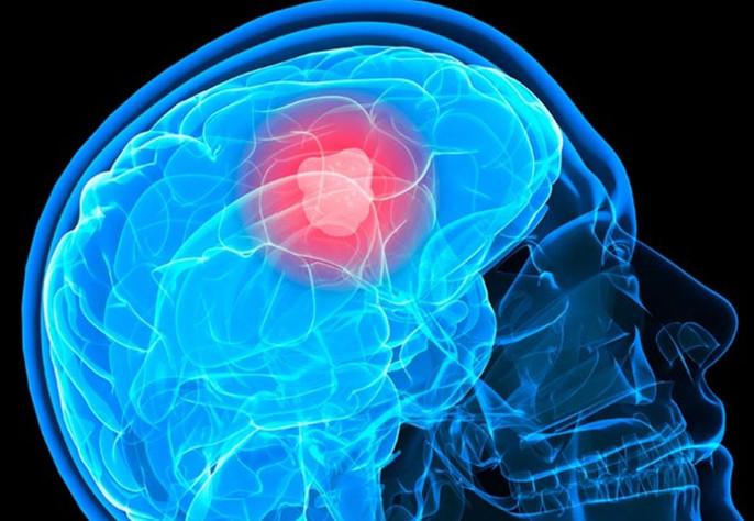 признаки рака головного мозга