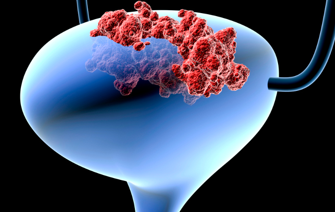признаки рака мочевого пузыря