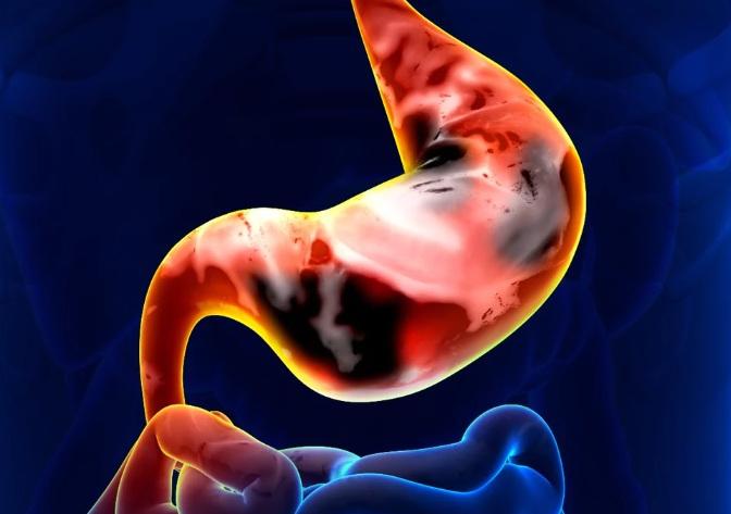причины рака желудка