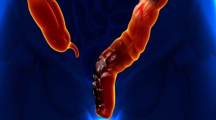 причины рака прямой кишки