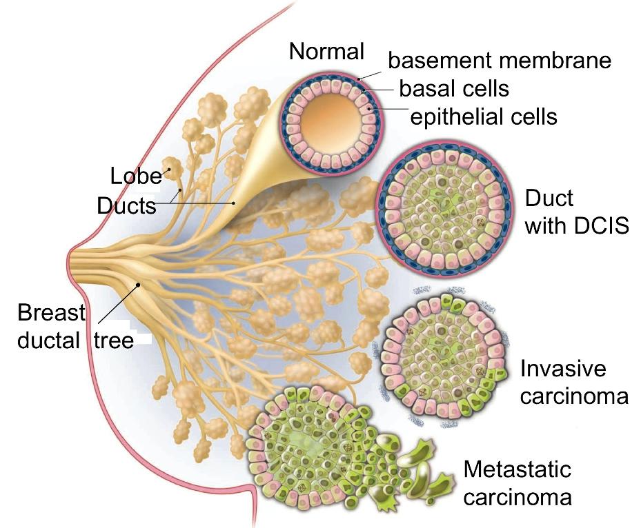 схема раковых опухолей