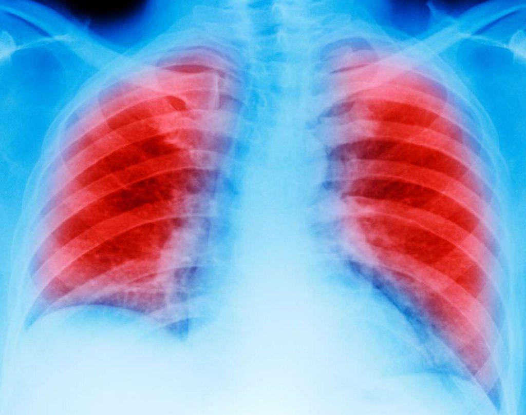 диаггностика рака легких