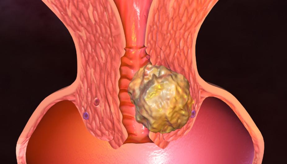 диагностика рака матки