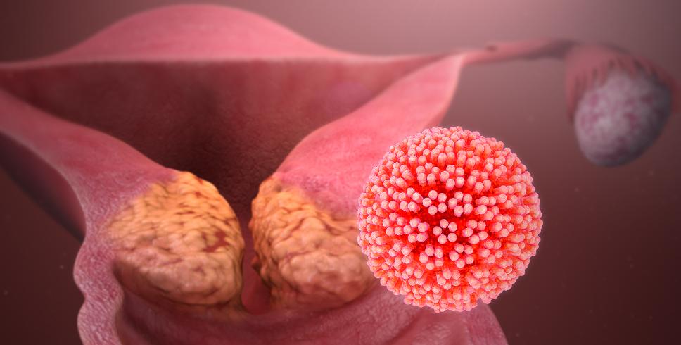 причины рака шейки матки