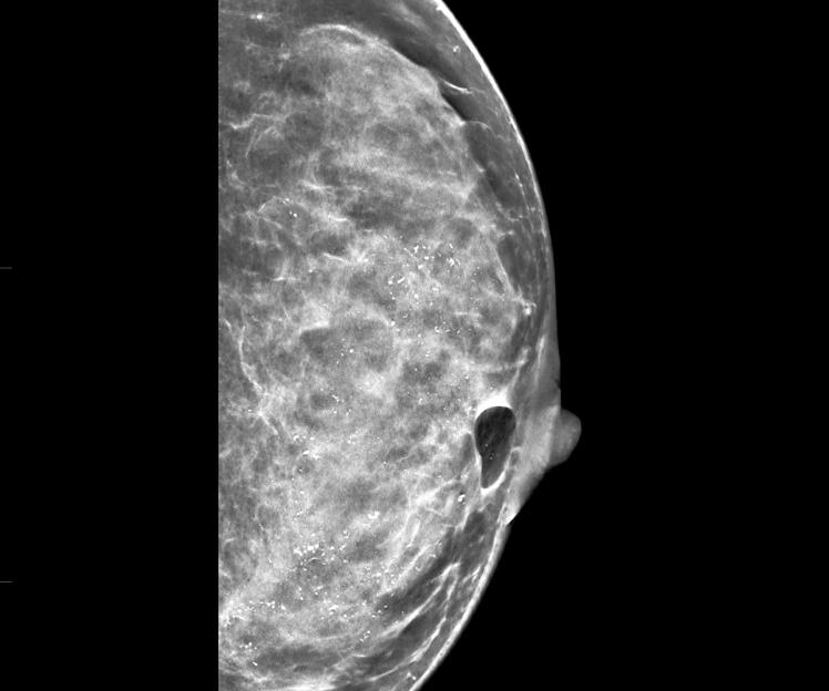 карцинома in situ молочной железы