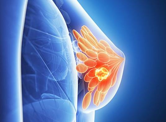скрининг рака молочной железы