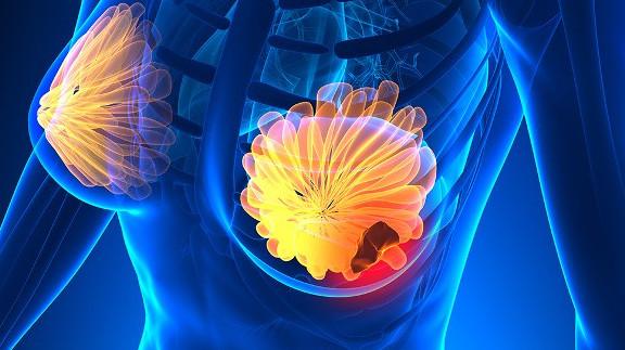 виды рака молочных желез