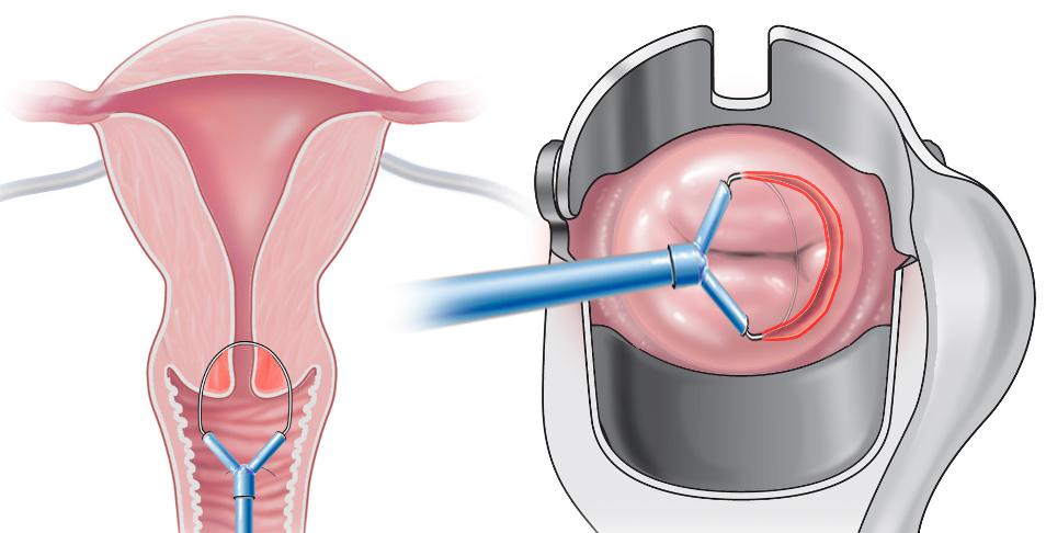 операции при раке шейки матки