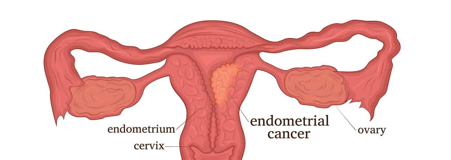 факторы риска рака матки