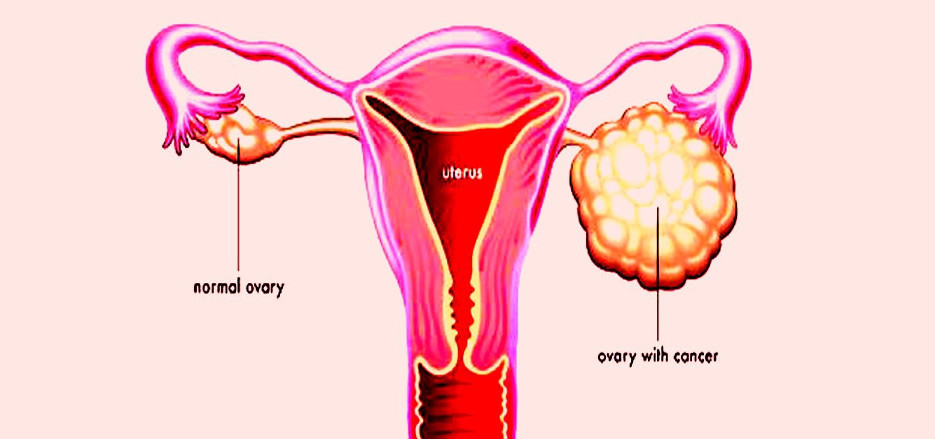 причины рака яичников