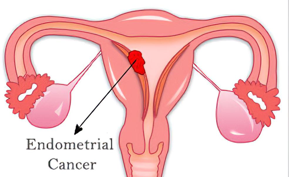 стадии рака тела матки